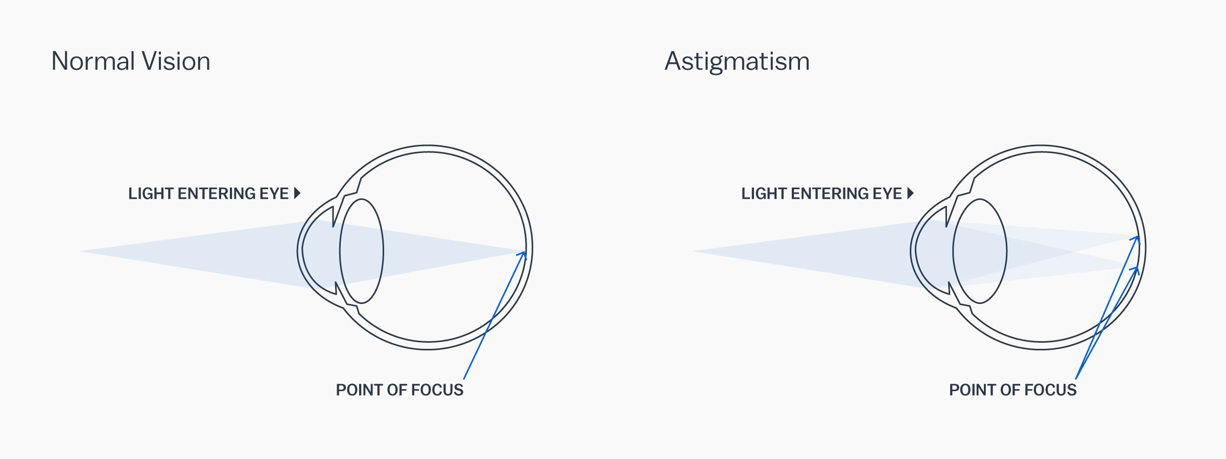 A graphic showing how astigmatism affects the eye