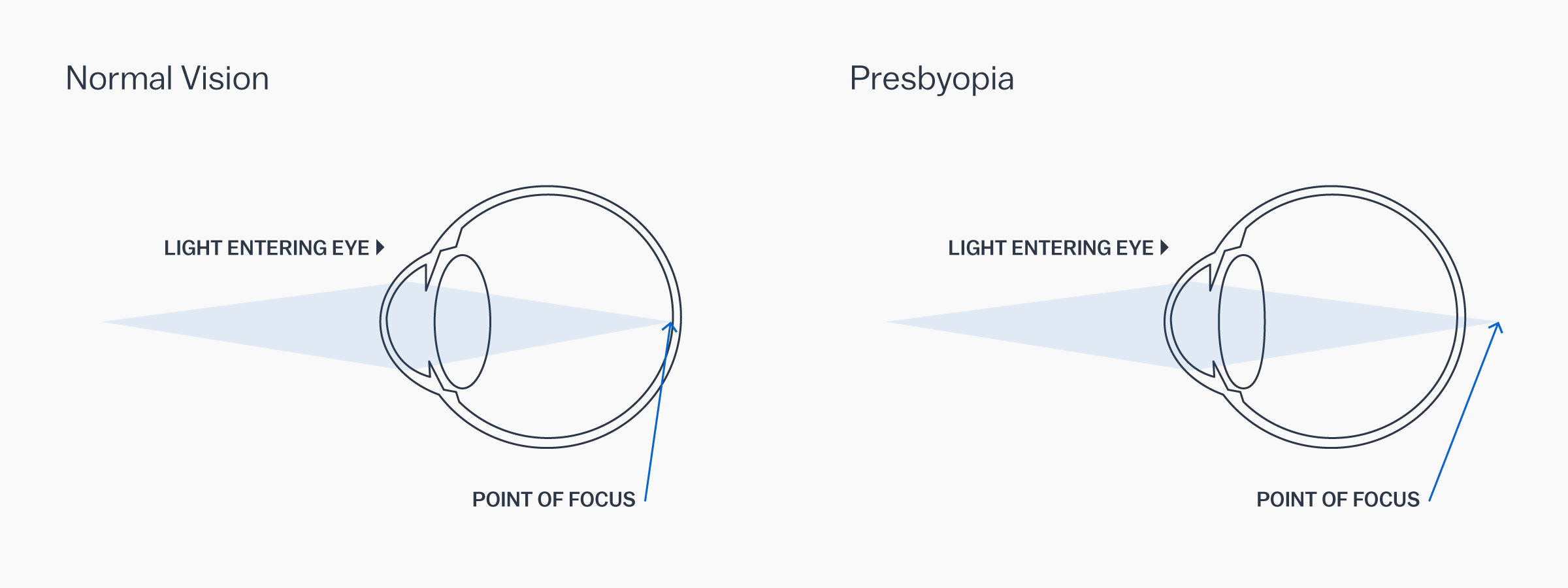 A graphic showing how presbyopia affects the eye
