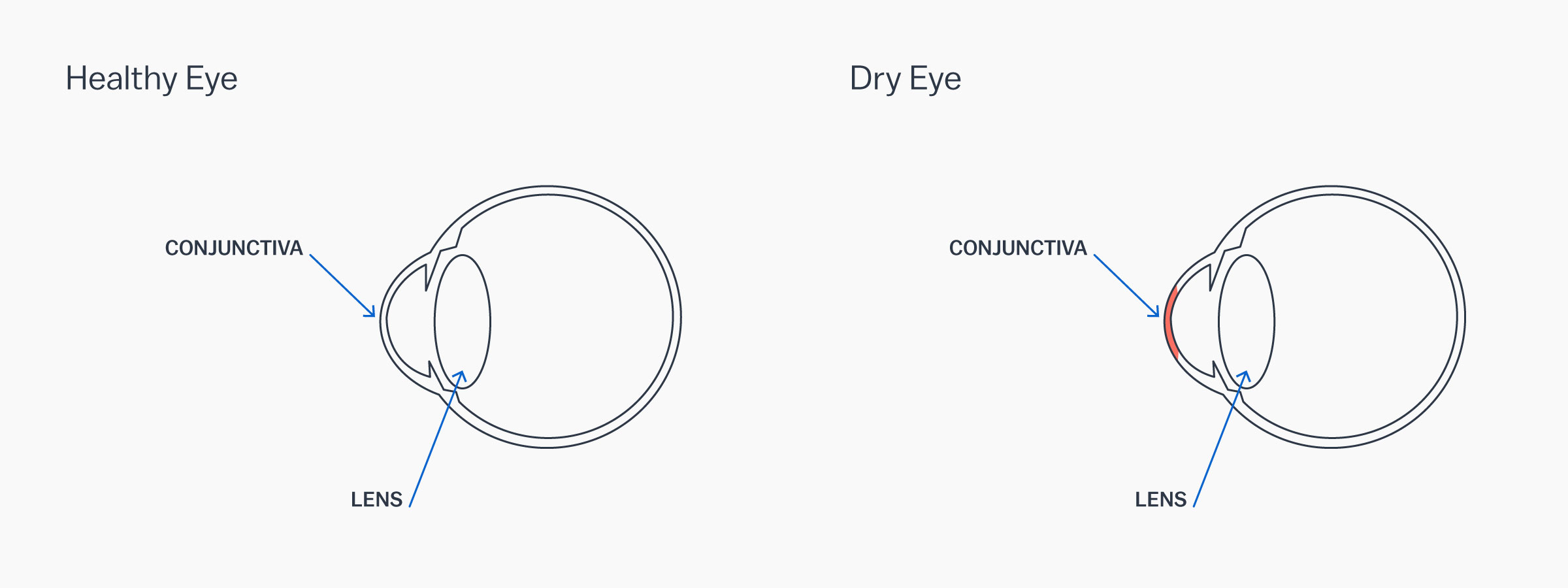 A graphic showing how dry eye syndrome affects the eye